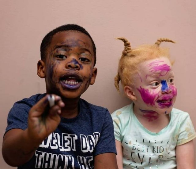 Twins With Different Skin Colors (15 pics)