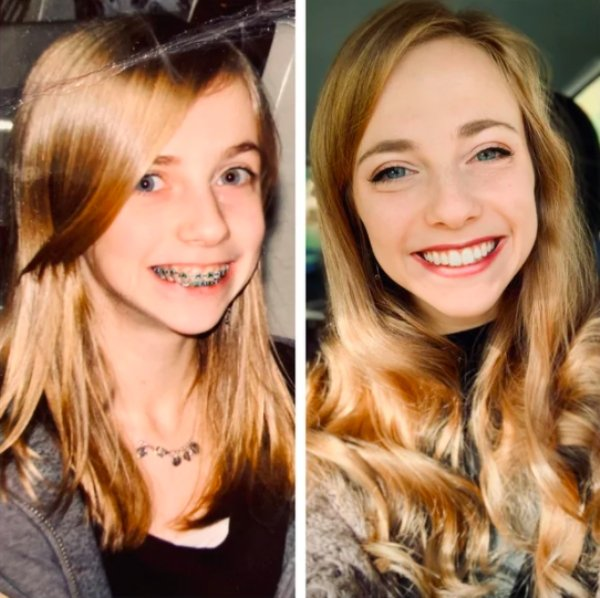 Girls Show Their Dramatic Changes (24 pics)