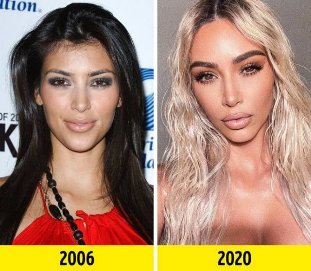 These Celebrities Changed A Lot (18 pics)