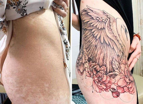 Tattoo Artist Turns Scars And Birthmarks Into Beautiful Art (33 pics)