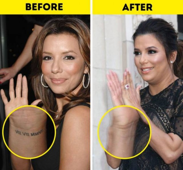 Celebrities Who Had Their Tattoos Removed (12 pics)