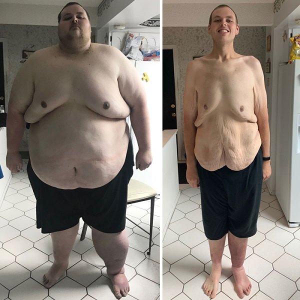 Amazing Weight Loss (29 pics)