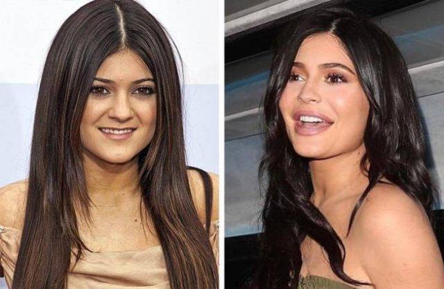 Celebrity Smiles Changes (14 pics)