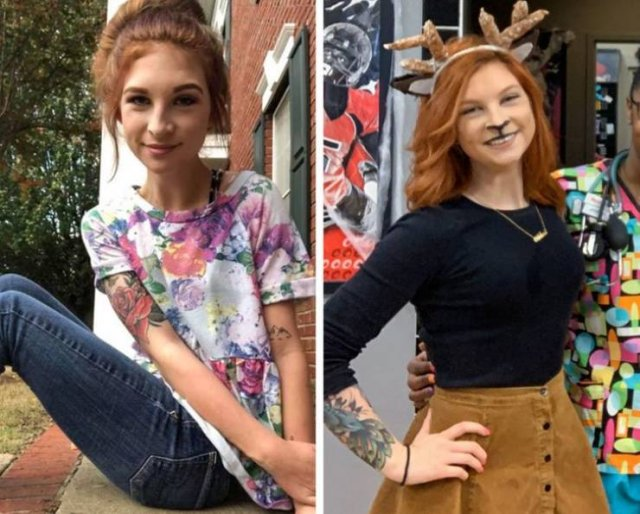 These People Won The Battle With Anorexia (19 pics)