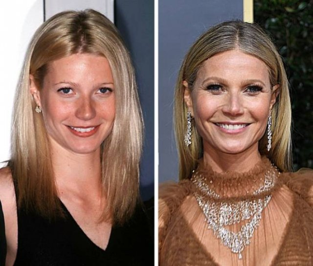 Celebrity: In Their Young Age And Now (18 pics)