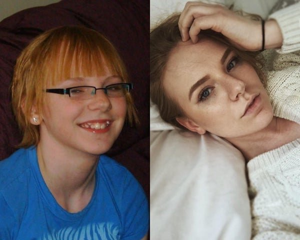 Ugly Ducklings: Beautiful Transformations (26 pics)