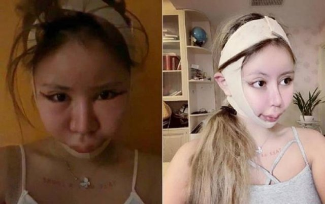 Dramatic Changes Of A 16-Year-Old Schoolgirl After Plastic Surgeries (25 pics)