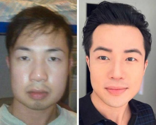 People Show Their Changes After Plastic Surgeries (20 pics)