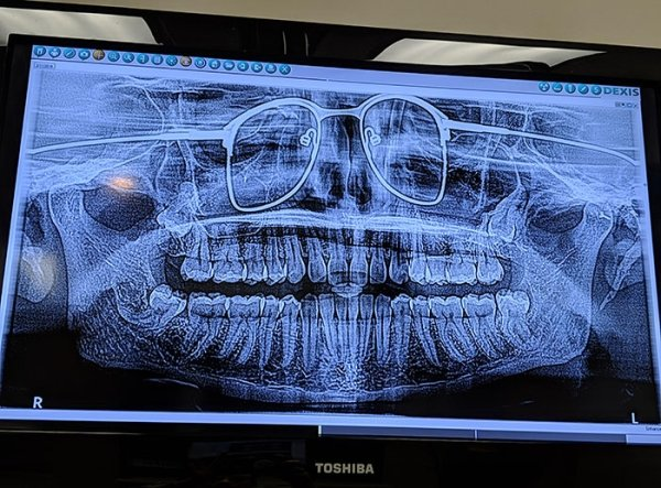 Things Under X-Rays (24 pics)