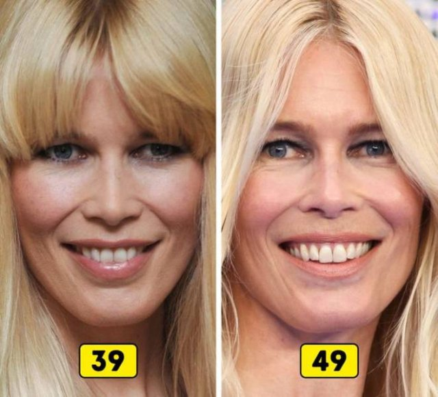 Celebrity Changes In The Past 10 Years (27 pics)