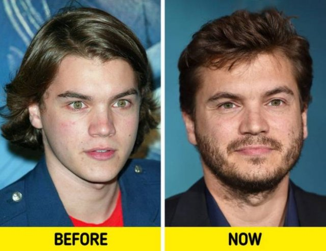 Celebrities In 2000's And Now (17 pics)