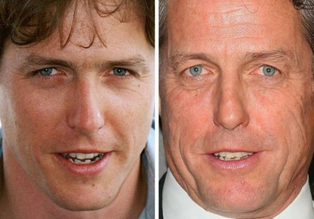 Celebrity Close-Up Changes Over The Years (18 pics)