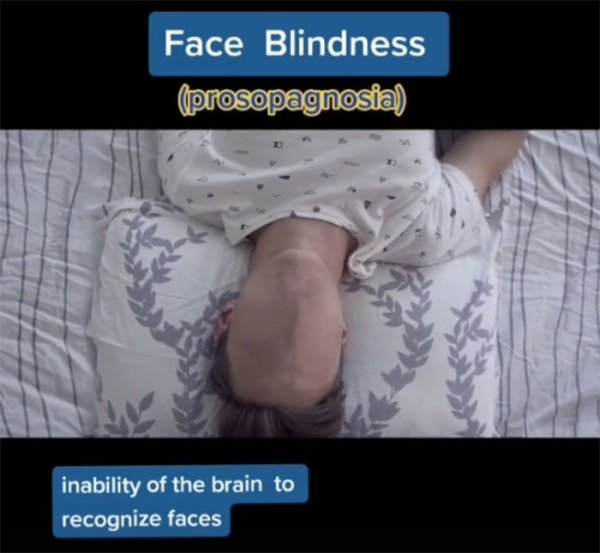 How People See With Different Medical Conditions (23 pics)