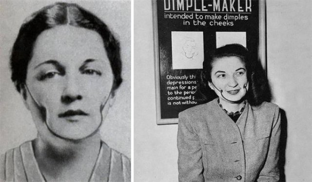 Weird Beauty Trends Throughout History (14 pics)