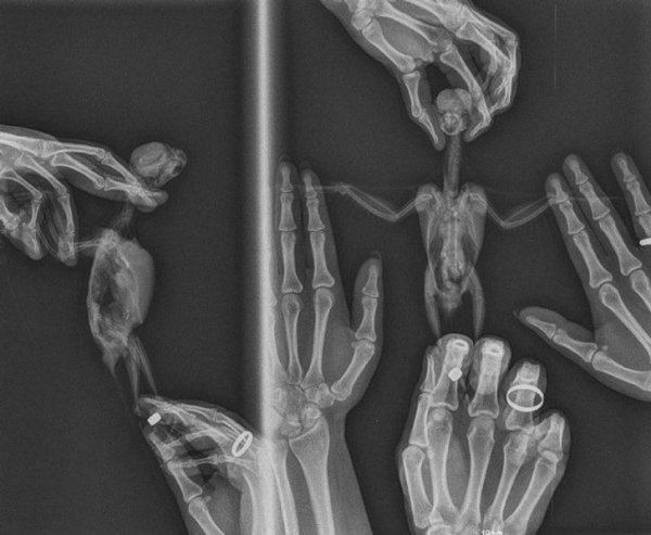 Things Unger X-Rays (21 pics)