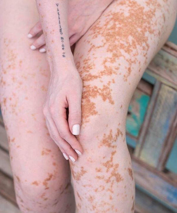 Girl With Vitiligo Show Her Beauty Through Modeling (19 pics)