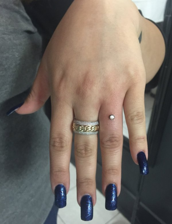 Rocks Implanted Into Fingers Instead Of Traditional Wedding Rings (9 pics)