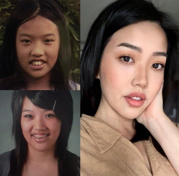From Ugly Ducklings To Beautiful Swans (25 pics)
