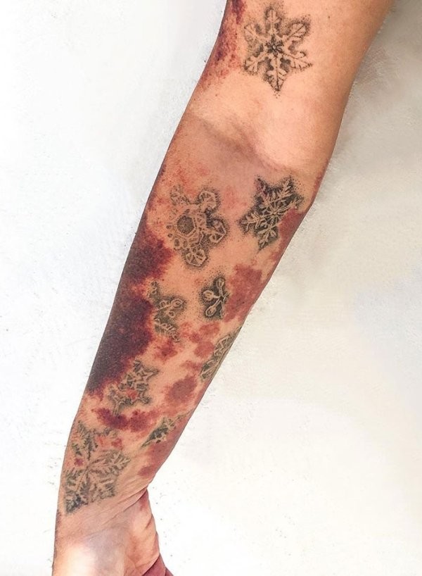 Creative Tattoos That Cover Scars (32 pics)