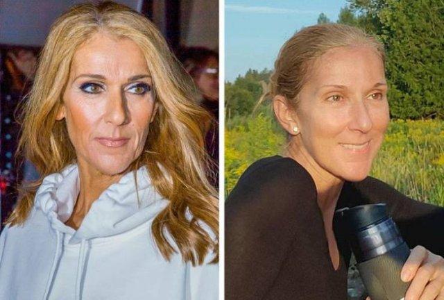 Celebrities Without Makeup (16 pics)