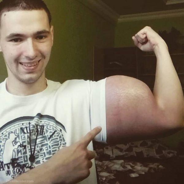This Russian Synthol Kid Risks His Life For Bigger Biceps! (10 pics)