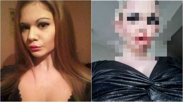 Bulgarian Girl With World's Largest Lips (21 pics)