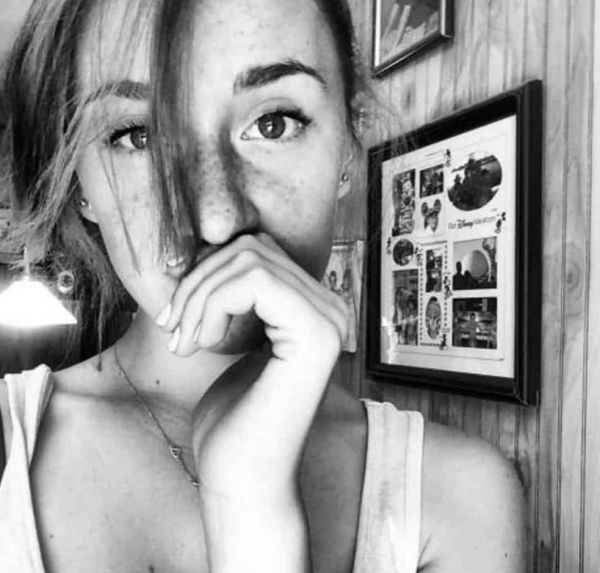 Your Freckles Just Make You More Adorable (44 Pics)